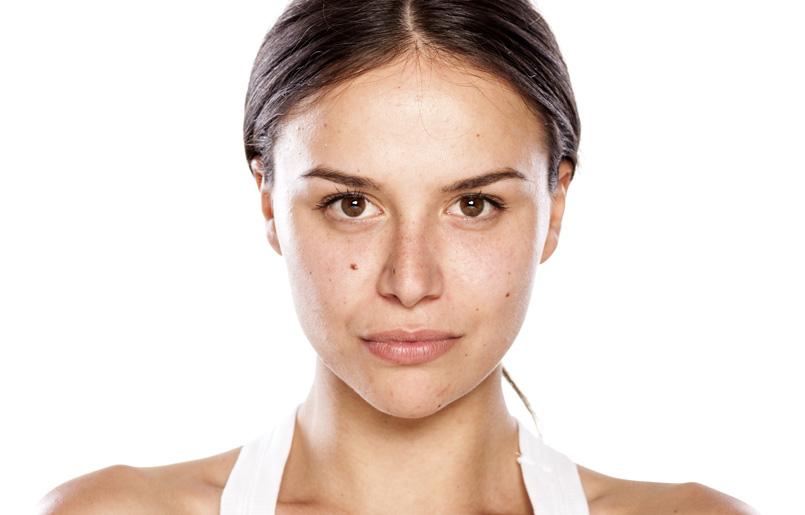 Tratamiento de las marcas de acné