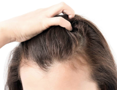 Tratamientos para prevenir y tratar la pérdida de cabello